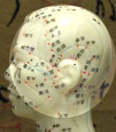 Left side of head pain location